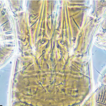 Review of the mite genus Krantzolaspina ...